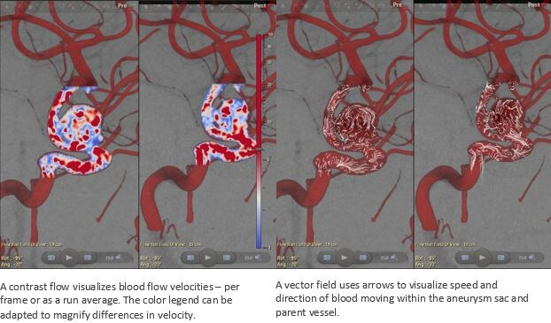 the contrast flow that visualizes blood flow velocities