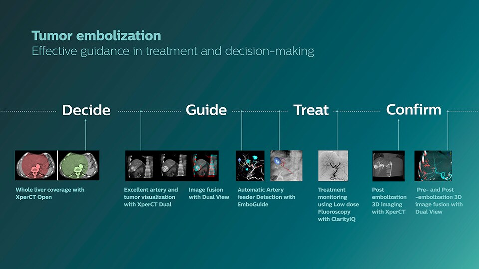Clinical solutions for tumor embolization