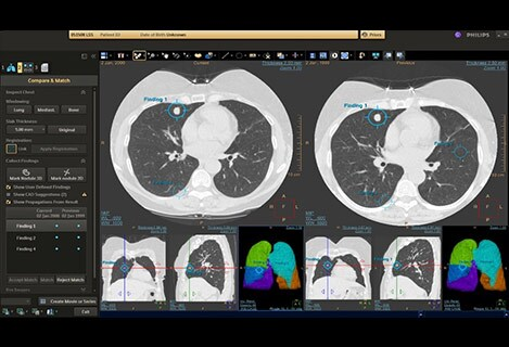 ct lung